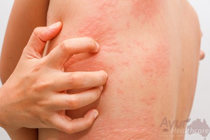Ayurvedic Care for Hives, Australia - Ayurveda for Allergies